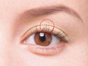 整形で大きな瞳にしたい!二重切開法についてまとめました!のサムネイル画像