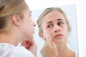 【化粧水でニキビが治る!】効果的な人気化粧水はコレだった!のサムネイル画像