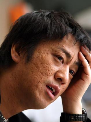 ブラマヨ吉田の肌のぶつぶつの原因は?!ぶつぶつエピソード!のサムネイル画像