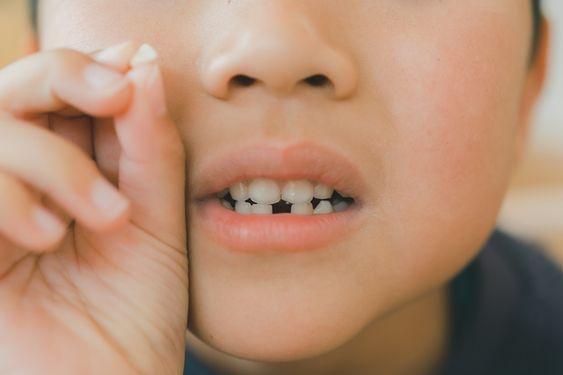 歯が抜ける夢の意味は死ぬ?宝くじが当たる?心理状態や理由は?のサムネイル画像