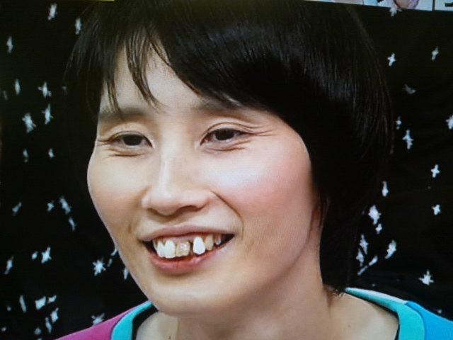 箕輪はるかのトレードマークの歯が綺麗に!!気分は堀北真希!?のサムネイル画像