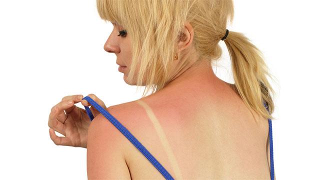 ヒリヒリ痛い日焼けには即効ケア!!日焼け後のアフターケアの方法のサムネイル画像