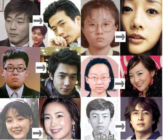 整形大国【韓国】!俳優・アイドルでカミングアウトした人はいるの?のサムネイル画像